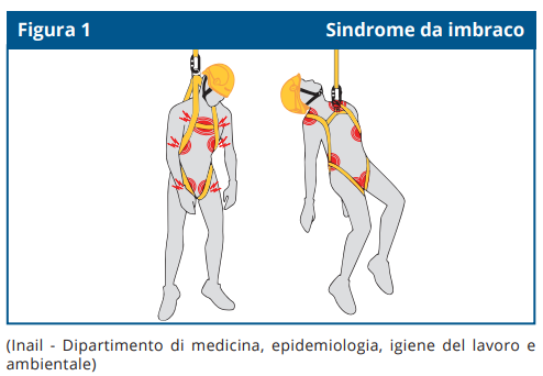 Sindrome da imbraco