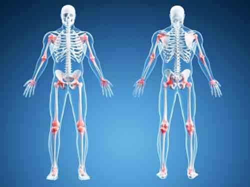 Linee guida regionali patologie muscolo scheletriche